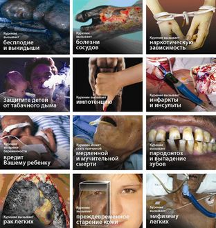Последствия табако-курения